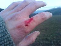Drobné poranění ruky, krev na ruce